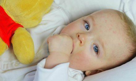 Ist das seltene Drei-Tage-Fieber gefährlich für eure Kids?