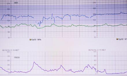 CTG: Lebenswichtige Untersuchung für euer Baby